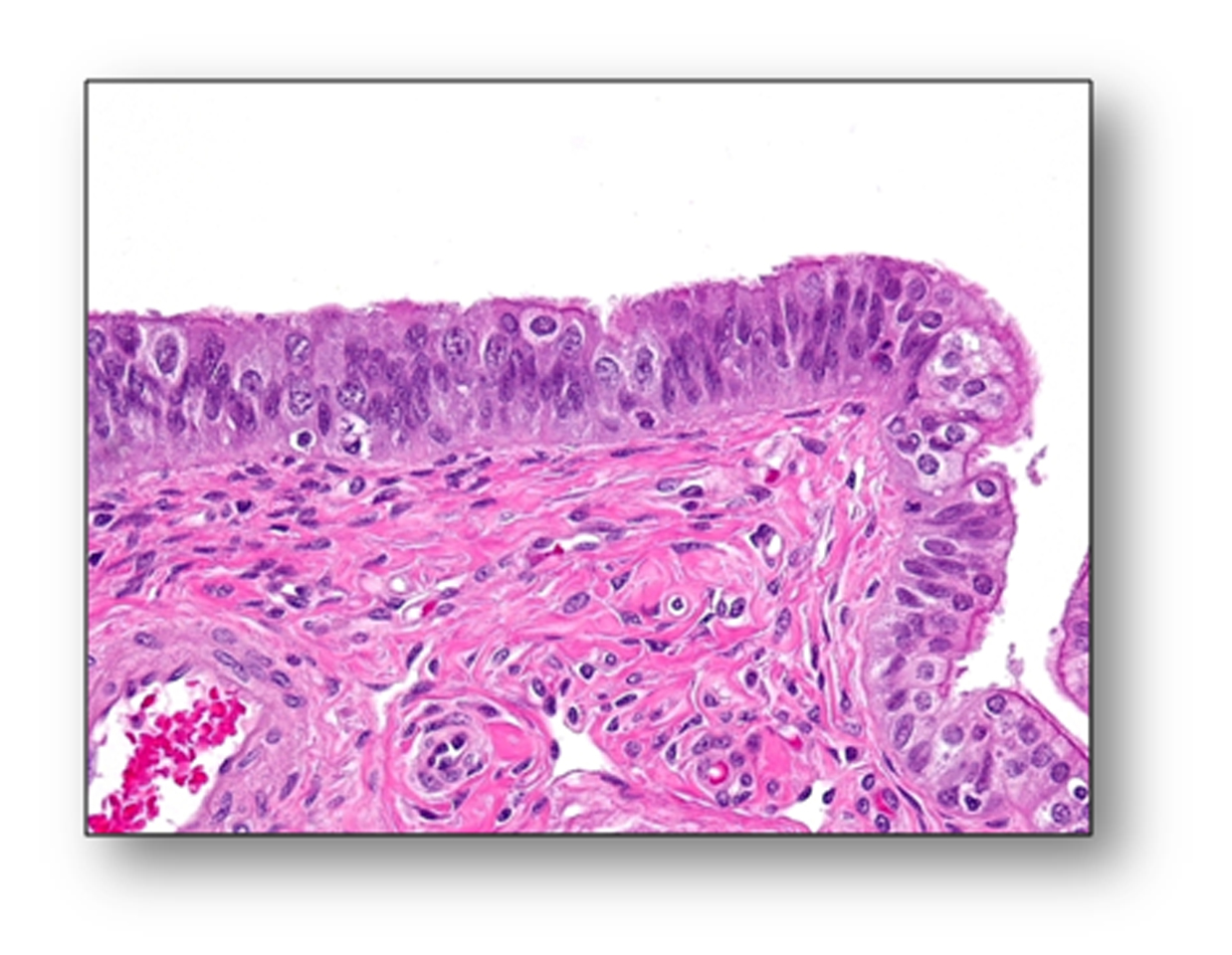 Images Of Training Set Ovarian Cancer Prevention Detection And